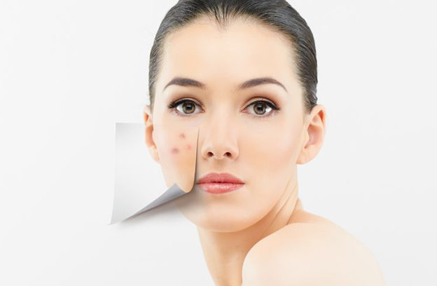 Proven and Safe Acne Treatment