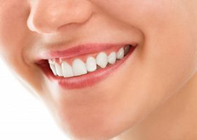Dental Care Procedures to Improve Your Smile